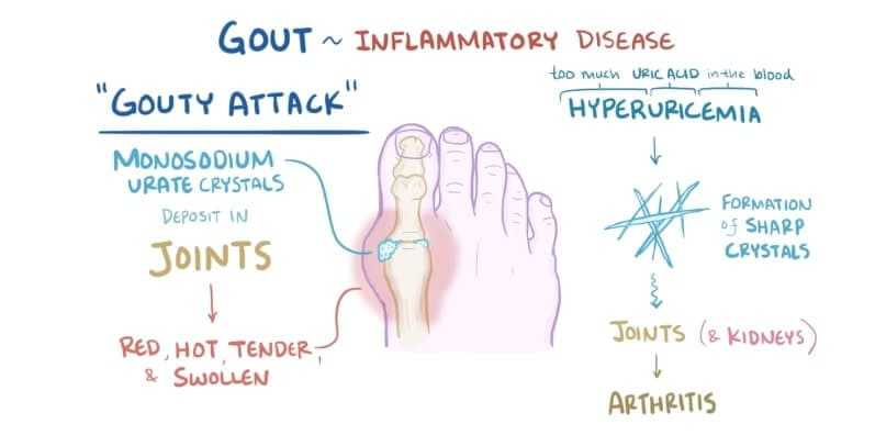 Treatment of Gouty Arthritis