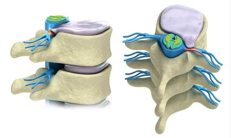 What are the symptoms of a herniated disc ?