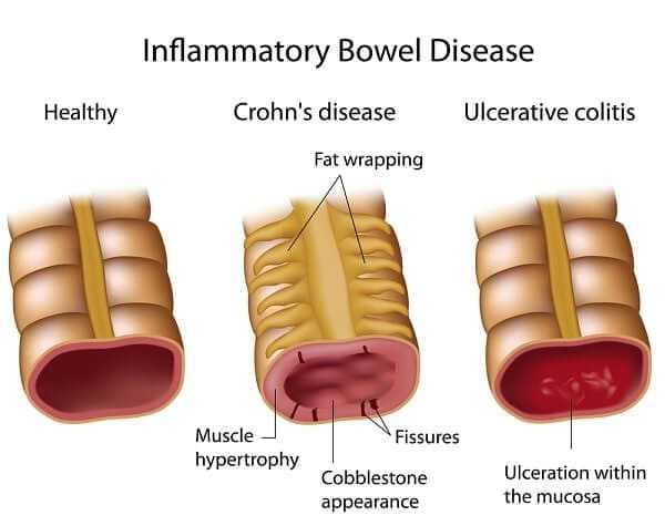 compare crohn's disease and ulcerative colitis