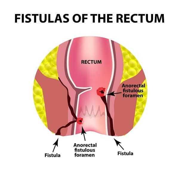 fistulas with crohn's disease