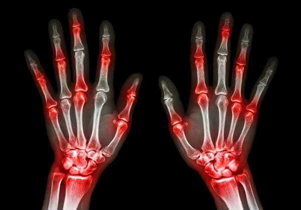 osteoarthritis hands xray