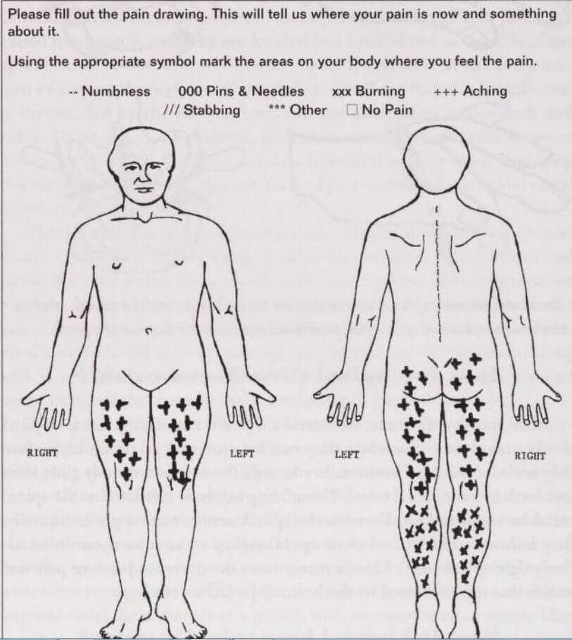 pain from spinal stenosis