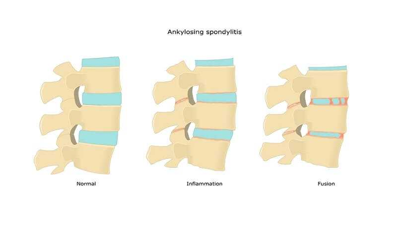 Photo of How to Avoid Ankylosing Spondylitis Complications