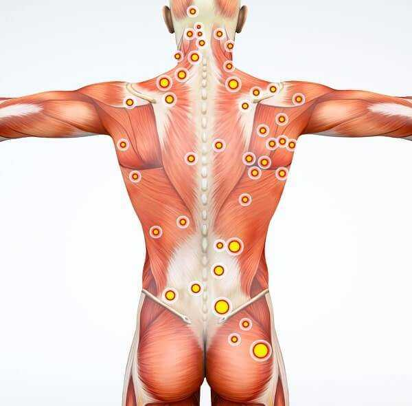 Back view of a man and his trigger points