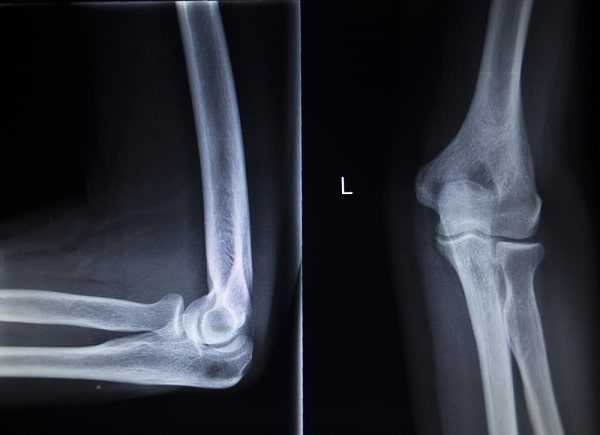 CAT scan of painful tennis elbow injury