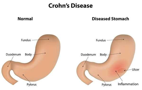 Crohns Disease IBD