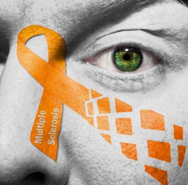 Multiple Sclerosis disease brain