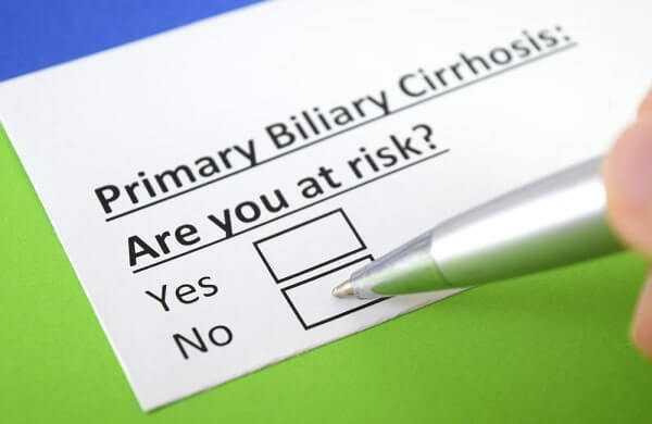 Primary Biliary Cirrhosis