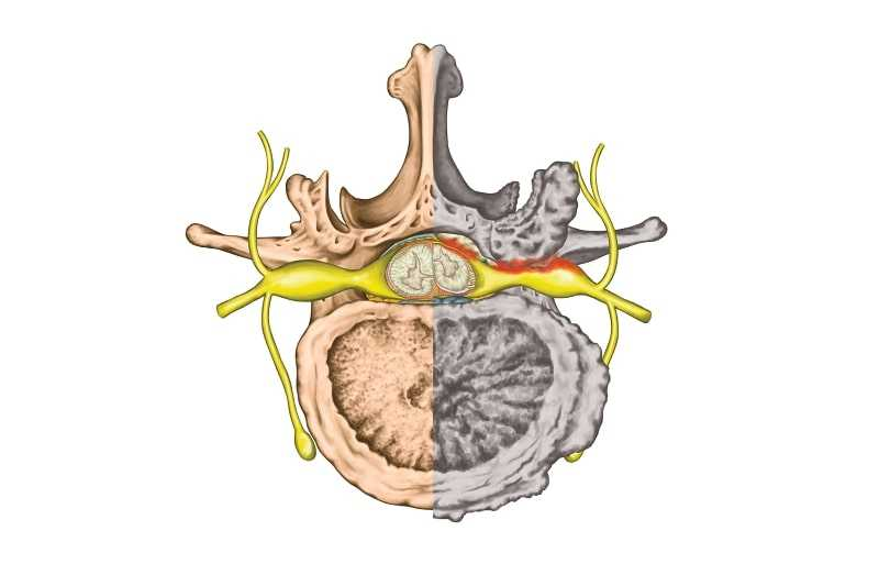 Spinal Stenosis and Sciatica