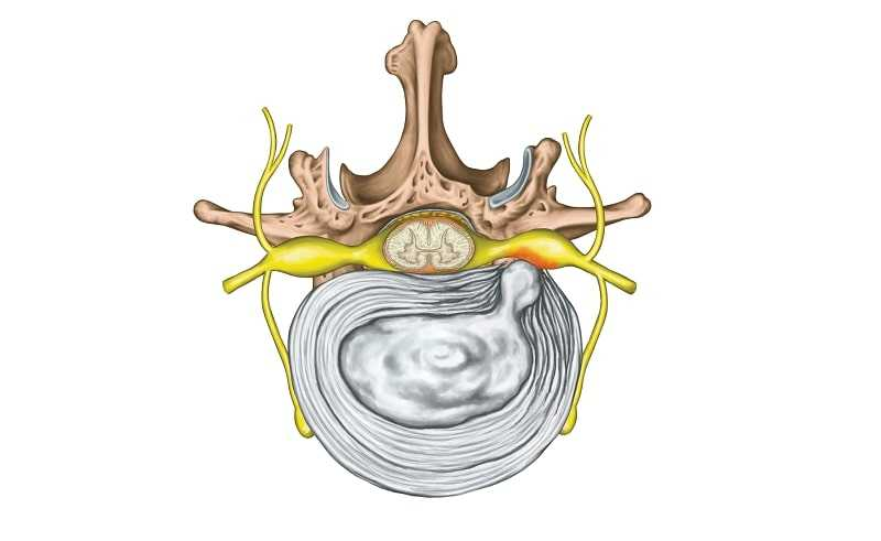Photo of Lumbar Disc Herniation