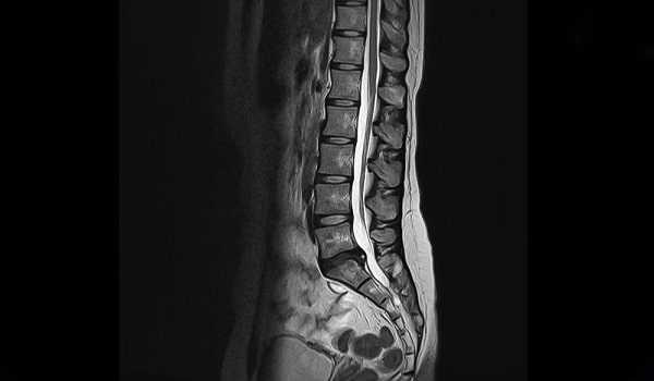lumbar spinal stenosis mri scan