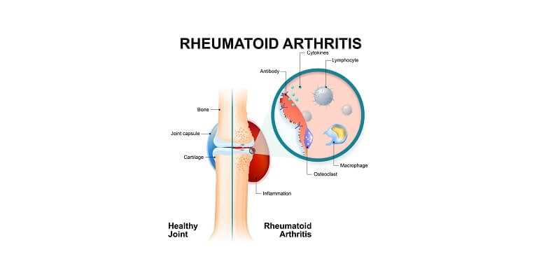 normal joint and one with rheumatoid arthritis