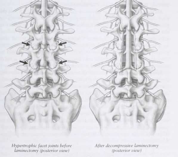 posterior view from behind of lumbar stenosis changes before and afre a laminectomy