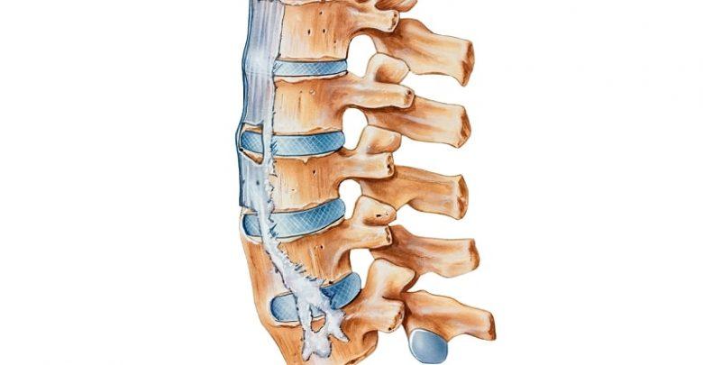 Ankylosing Spondylitis - Inflammatory Back Pain