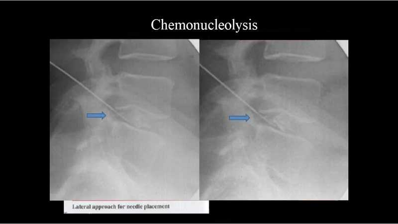 Photo of Chemonucleolysis (Chymopapain Injection) for Disc Herniation