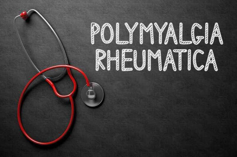 Photo of Detailed Information About Polymyalgia Rheumatica