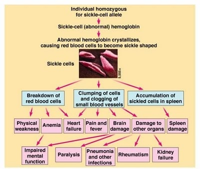 MECHANISMS FOR THE CHRONIC PAIN OF sickle cell anemia