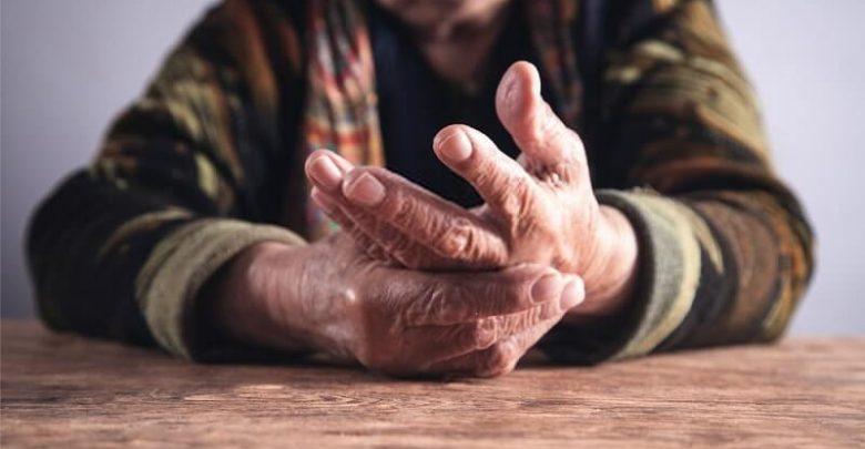 Rheumatoid Arthritis Flares