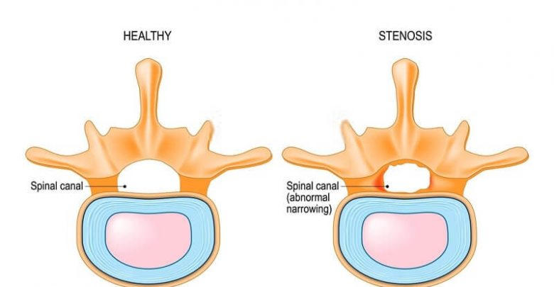 Surgical procedure for spinal stenosis