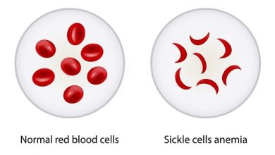 Photo of The Diverse Types Of Pain In Sickle Cell Anemia