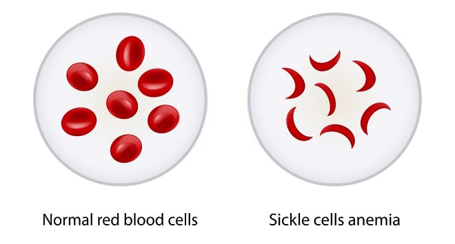 Types Of Pain In Sickle Cell Anemia