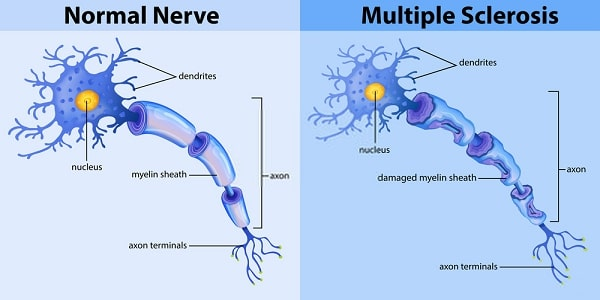 What Causes MS