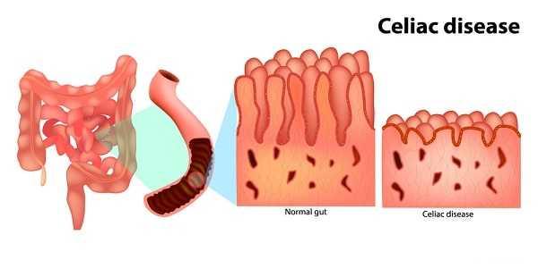 celiac disease gluten sensitive enteropathy