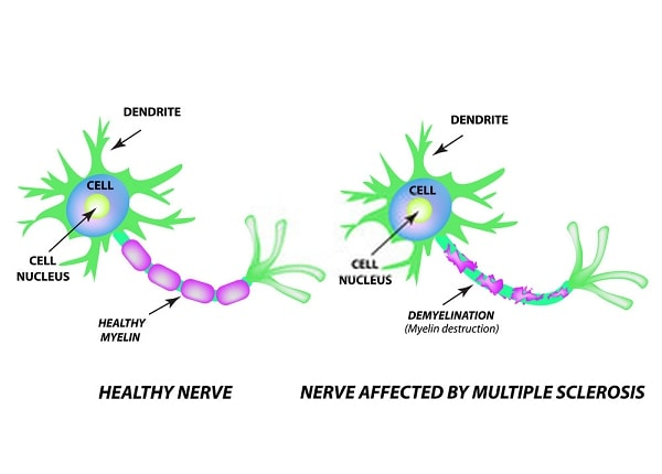 How MS affected nerve cells