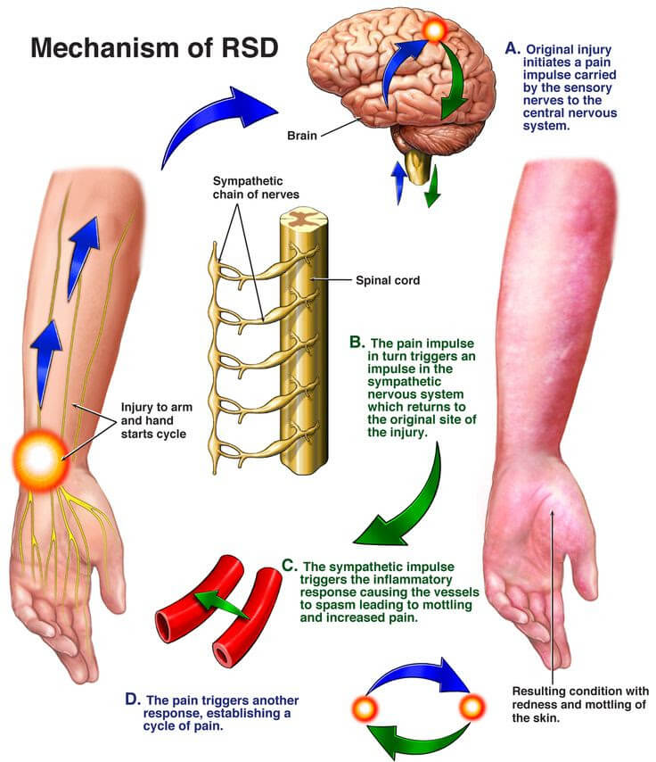 mechanism of RSD