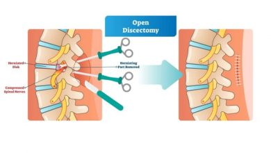 Photo of Discectomy Surgery: Things One Should Know About Discectomy