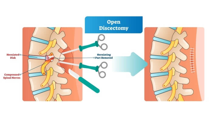 open discectomy