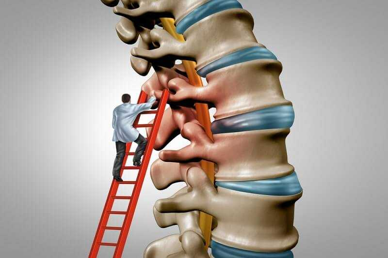 Photo of Spinal Stenosis Surgery