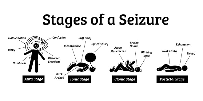 Photo of Epilepsy: Understanding Seizures