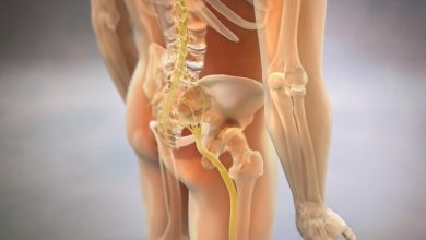 Photo of Brief and easy to understand information on Sciatica