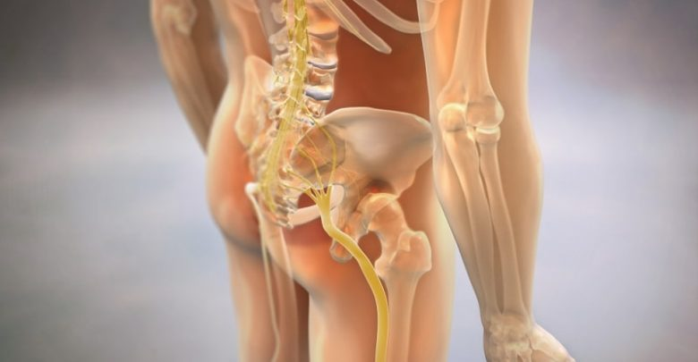 3D Rendering Sciatica Pinched Nerve