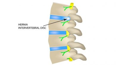 Photo of Acute Intervertebral Disc Herniation