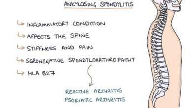 Photo of Ankylosing Spondylitis (AS)