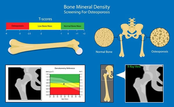 Bone mineral density (BMD) osteoporosis dual energy X-ray absorptionmetry adult disease equipment medical clinic central DXA pain radiography hospital fragility risk