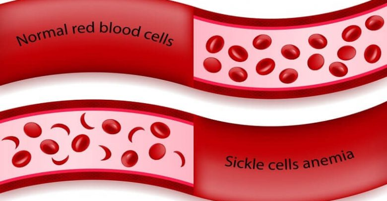 Comparison between normal red blood cells and sickle cells anemia in blood vessel