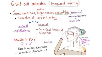Photo of Giant Cell Arteritis (GCA)