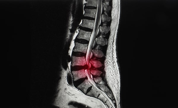 MRI of lumbar spine showing ruptured intervertebral disc herniation at L4 L5 level