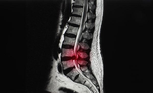 MRI of lumbar spine showing ruptured intervertebral disc herniation at L4 L5 level