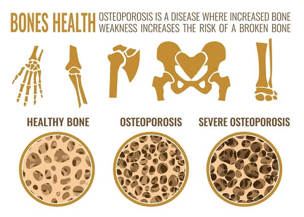 Osteoporosis bone and healthy bone in comparison
