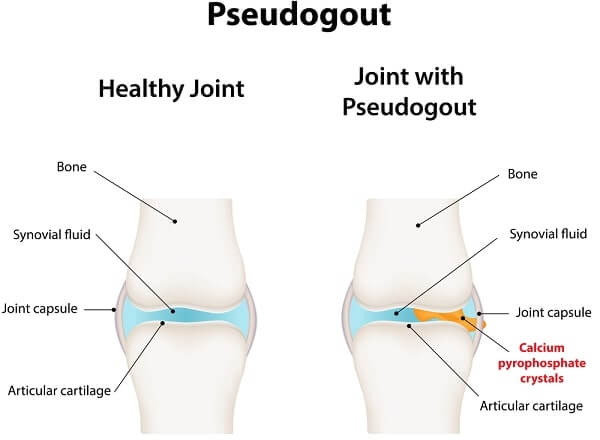 joint with Pseudogout