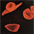 Right Longfat sickled red blood cells mingle with normal round red cells.