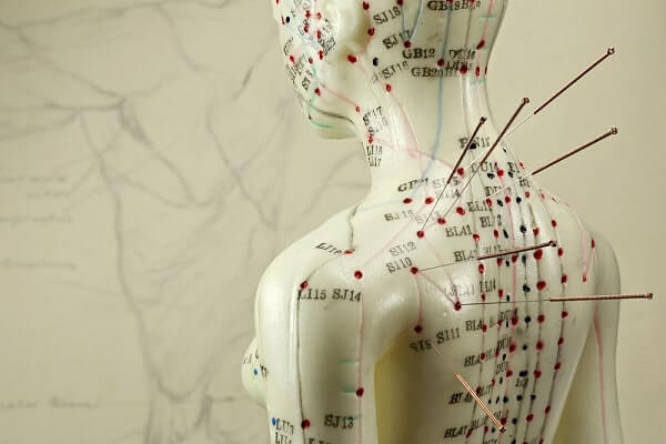 acupuncture for endometriosis
