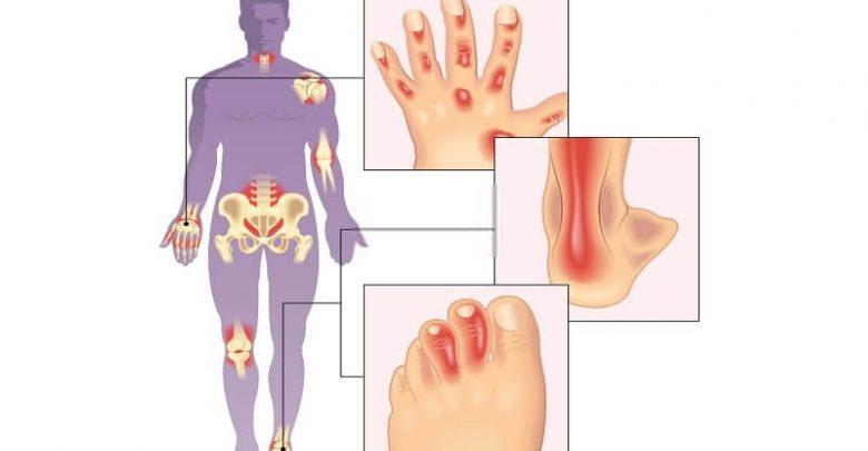 anatomy effected by psoriatic arthritis