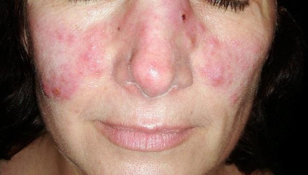 lupus face rush