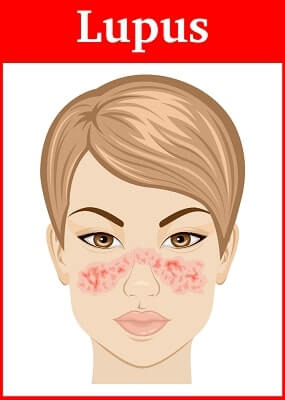 symptoms of Systemic lupus on the face of a young girl