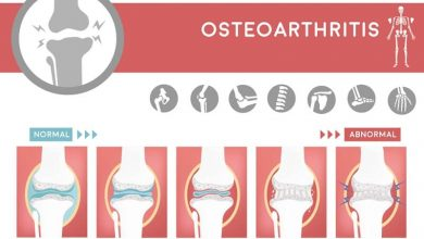 degenerative of osteoarthritis